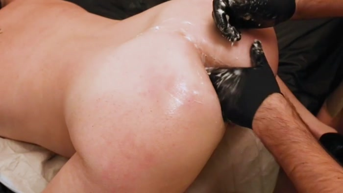 slutload-deep-dildo-fist-penetration-anal-skin-infection