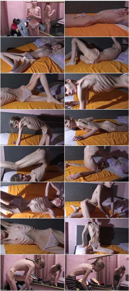 SkeletonsSkinnyVZ-g071_thumb_m.jpg